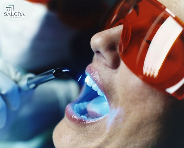 Pembroke Pines Teeth Whitening