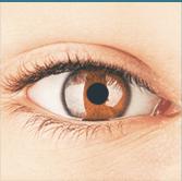 glaucoma, microchirurgia con laser, miopia