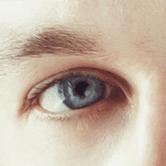 oculistica infantile, strabismo, trapianto corneale