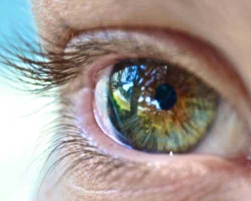 Un occhio di strano colore