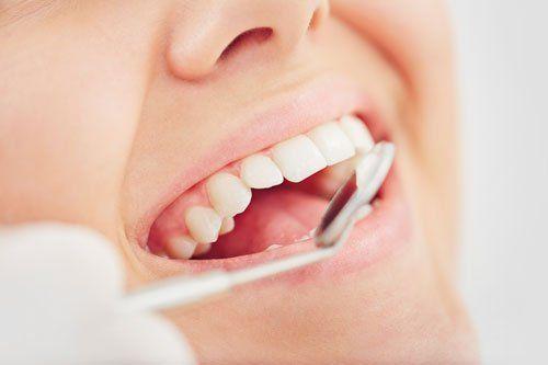 teeth cleaning Bradford PA