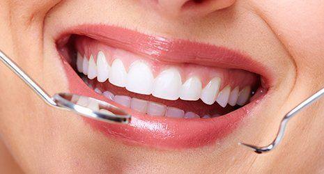 strumenti chirurgici dentali e sorriso di donna