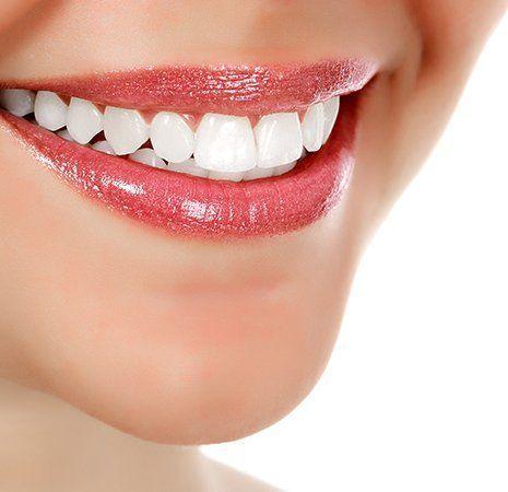denti bianchi e curati di donna