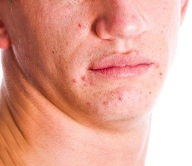 terapia tumori della pelle, terapia di malattie della pelle, psoriasi