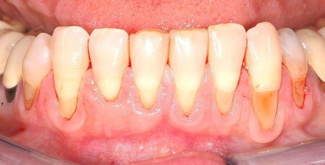 trattamenti per recessione gengivale, interventi chirurgici dentali, dentisti esperti