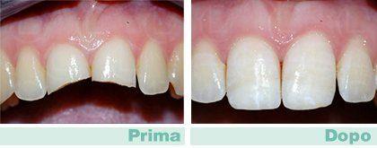 eliminazione tessuto cariato, restauri dentali, recupero denti