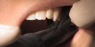 metodi dentistici innovatici, diagnosi dentali con apparecchi, diagnosi dentali indolori