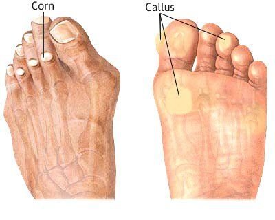 Podiatrist Placentia | Yorba Linda | Foot Doctor | Callous Treatment