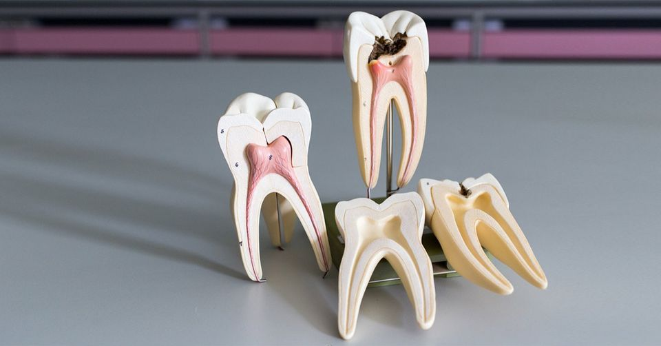 The Dos and Don'ts of Post Root Canal Treatment