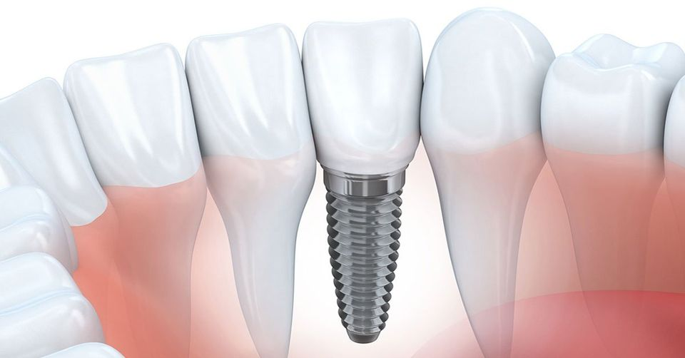 What Happens During a Tooth Implant Process? A Dental Implant Timeline