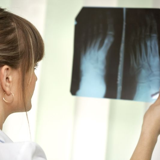 A Grand Island, NE foot doctor looks at an x-ray of feet