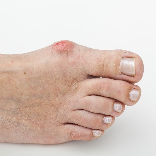 A red bunion on a foot