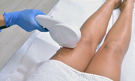 Donna che ottiene gambe trattamento laser della pelle in un salone di bellezza