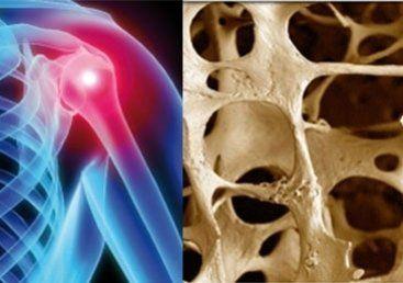diagnostica densitometria ossa