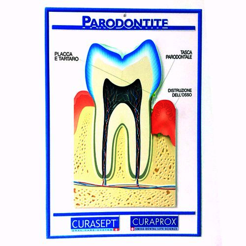 Manifesto della parodontite