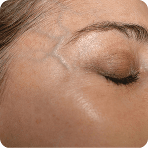 Enlarged facial veins