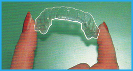 ortodonzia invisibile, mascherine invisibili