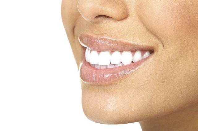 Teeth Whitening Fayetteville, NC