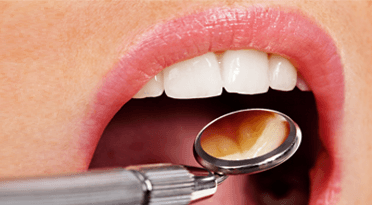 A mirror being used to xamine a patients mouth