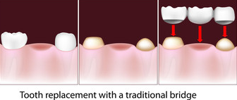A tooth replacement explanation diagram