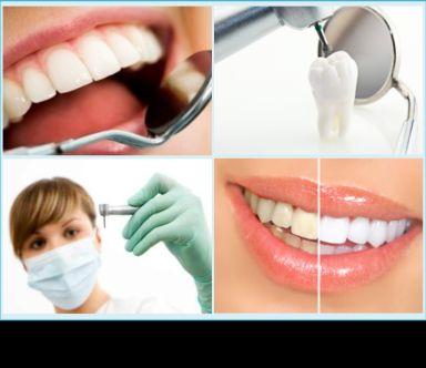 estetica dentale e sbiancamento denti