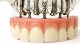 studio dentistico, malattie del cavo orqale, medico chirurgo