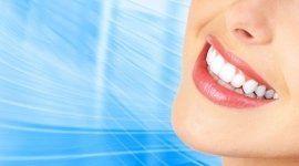 igiene orale, malattie del cavo orale, sbiancamento dentale