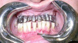 implantologia al titanio firenze,