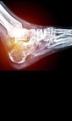 plantari ortopedici