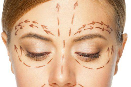viso di una donna con frecce disegnate utili per chirurgia estetica