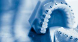 due protesi dentali