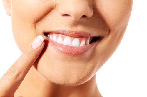 donna che si indica i denti