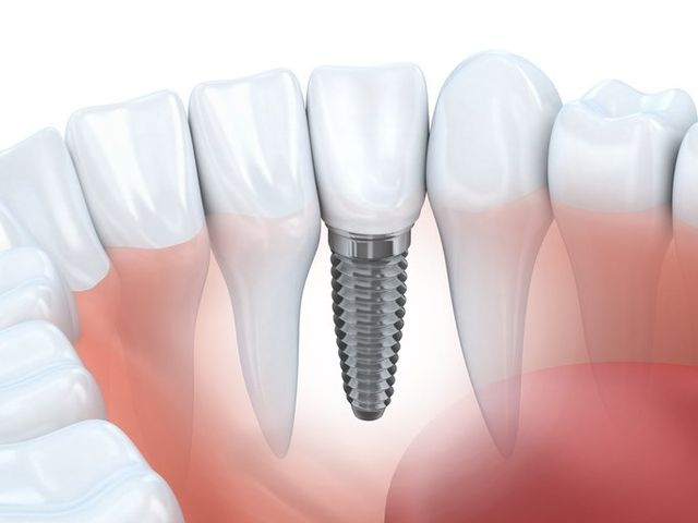 Dental Implants San Antonio, TX