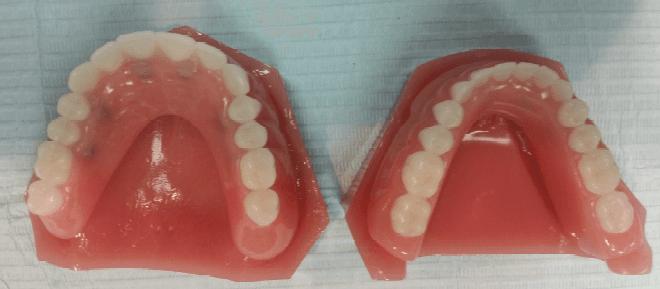 Dentures San Antonio, TX