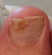 fungal feet