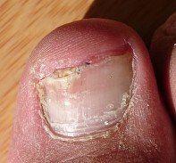 unhealthy nail