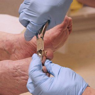 fungal nail treatment