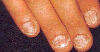 Delle mani con le unghie rovinate