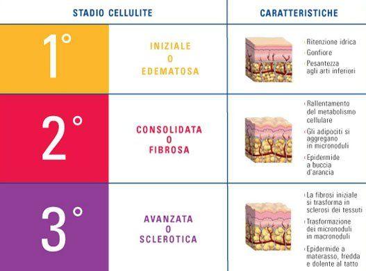 Uno schema che spiega i vari stadi della cellulite