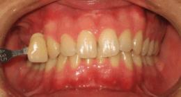 trattamento carie, trattamento alitosi, pulizia denti