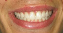 endodonzia, ortodonzia, denti bianchi