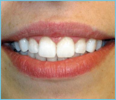 dentisti, odontoiatri, sbiancamento denti
