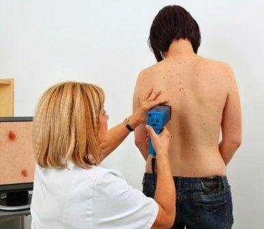 studio delle patologie tumorali della pelle