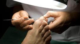 Trattamento di unghie incarnite
