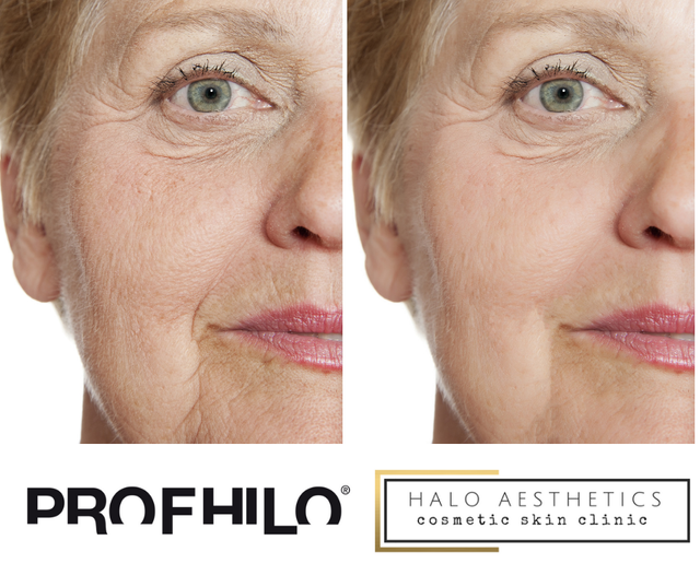 Book Profhilo treatment in Milton Keynes with our expert Nurse