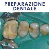 preparazione dentale