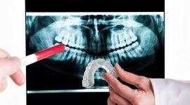 mano con pennarello che punta su una ecografia dentale e un`altra mano con un bite