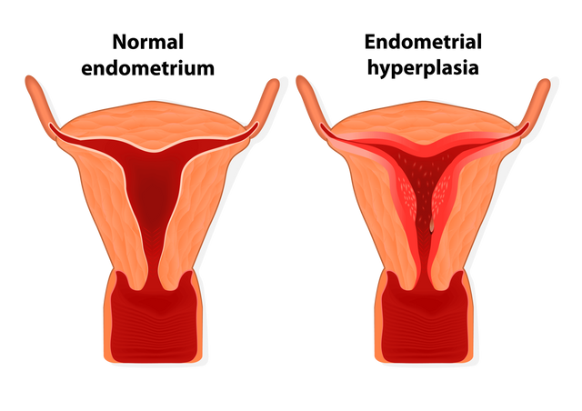 Image of Endometrial hyperplasia is an overgrowth of tissue in the endometrium uterus. The uterine lining becomes too thick which results in abnormal bleeding.