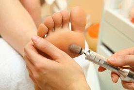 using an electric tool to remove hard skin