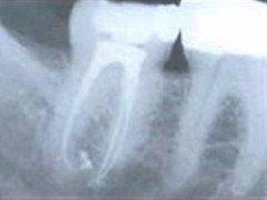 Cura canalare per endodonzia